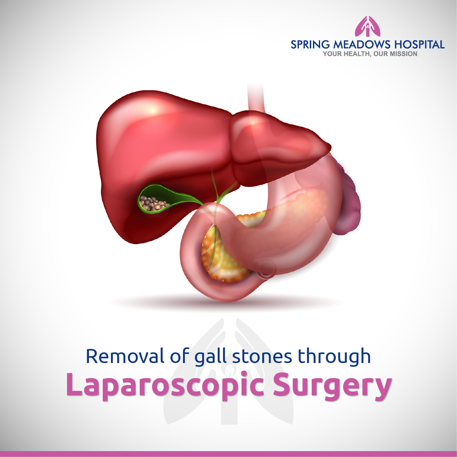 Best Laparoscopic Treatment Surgery Hospital in Delhi-Spring Meadows Hospital
