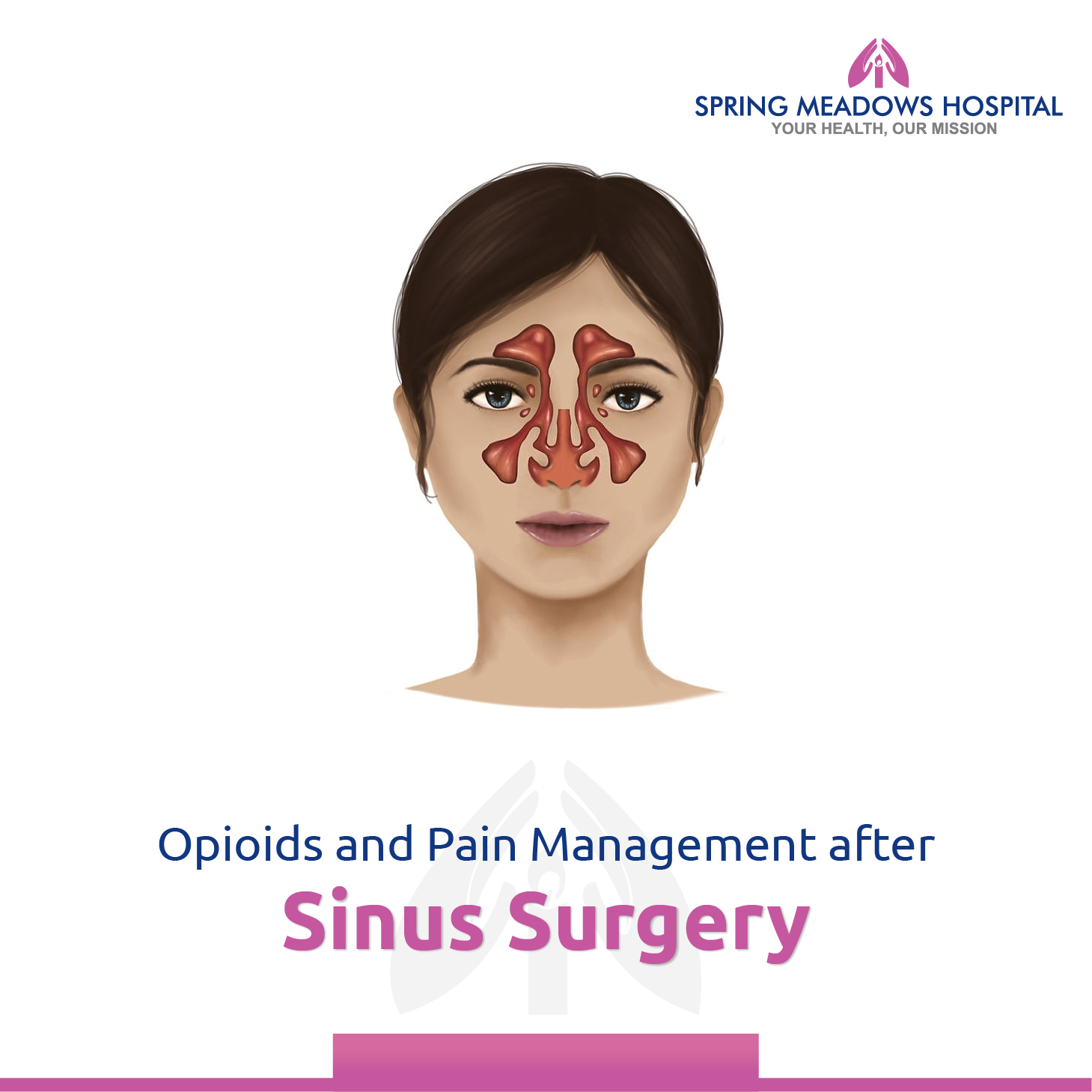 Opioids and Pain Management after Sinus Surgery | Spring Meadows Hospital